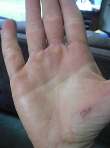 ripped up hand