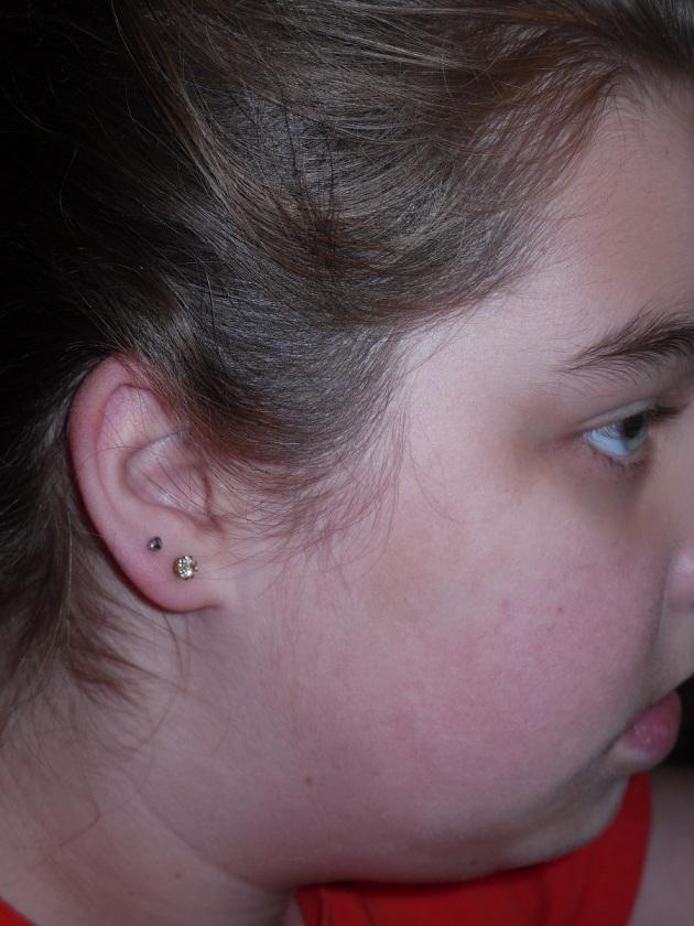 carlys ears
